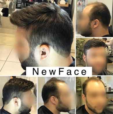 ترمیم مو و کاشت مو مردانه